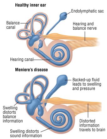 menieres-inner-ear